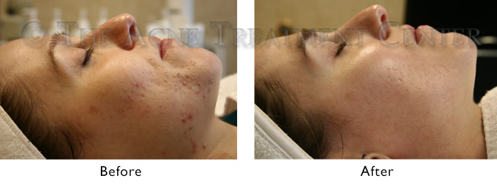 Non-Inflamed Before and After