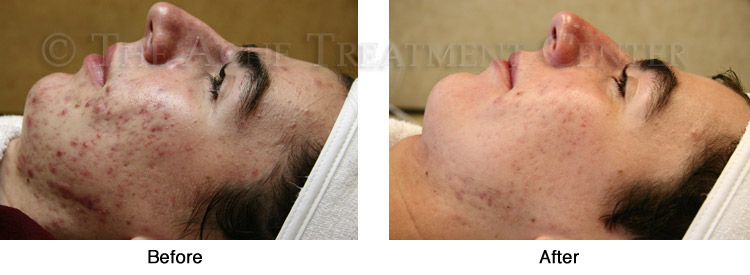 Acne Pictures, Acne Photos | Pictures of Acne, Photos of Acne | Before and After Hyperpigmentation