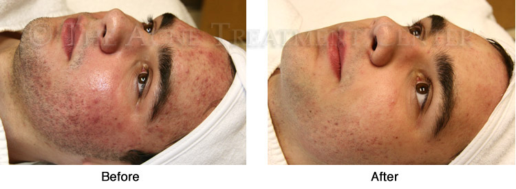 Acne Pictures, Acne Photos | Pictures of Acne, Photos of Acne | Before and After Hyperpigmentation, Inflamed Acne