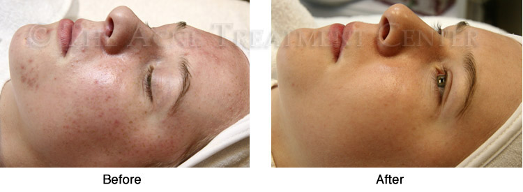 Acne Pictures, Acne Photos | Pictures of Acne, Photos of Acne | Before and After Non-Inflamed Acne