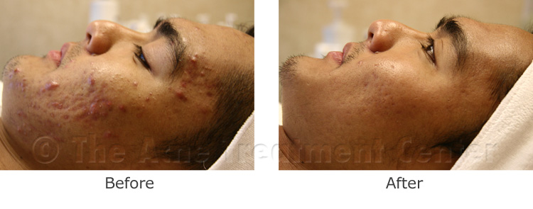 Acne Pictures, Acne Photos | Pictures of Acne, Photos of Acne | Before and After Inflamed Acne