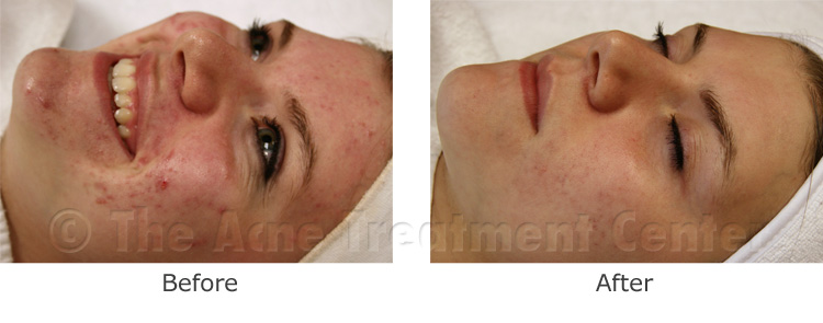 Acne Pictures, Acne Photos | Pictures of Acne, Photos of Acne | Before and After Non Inflamed Acne