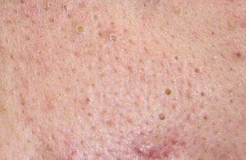 What is a blackhead?