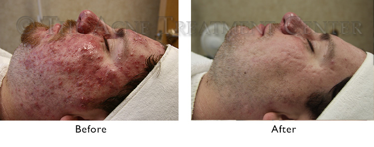 rosacea-before-after-v2