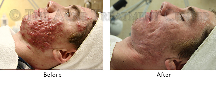 acne-conglobata-before-after