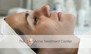 Combination Acne Treatment Photo