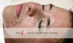 Combination Acne Treatment Photo