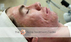 Conglobata Acne Treatment Photo