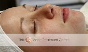 Inflamed Acne Treatment Photo