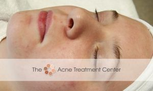 Non Inflamed Acne Treatment Photo