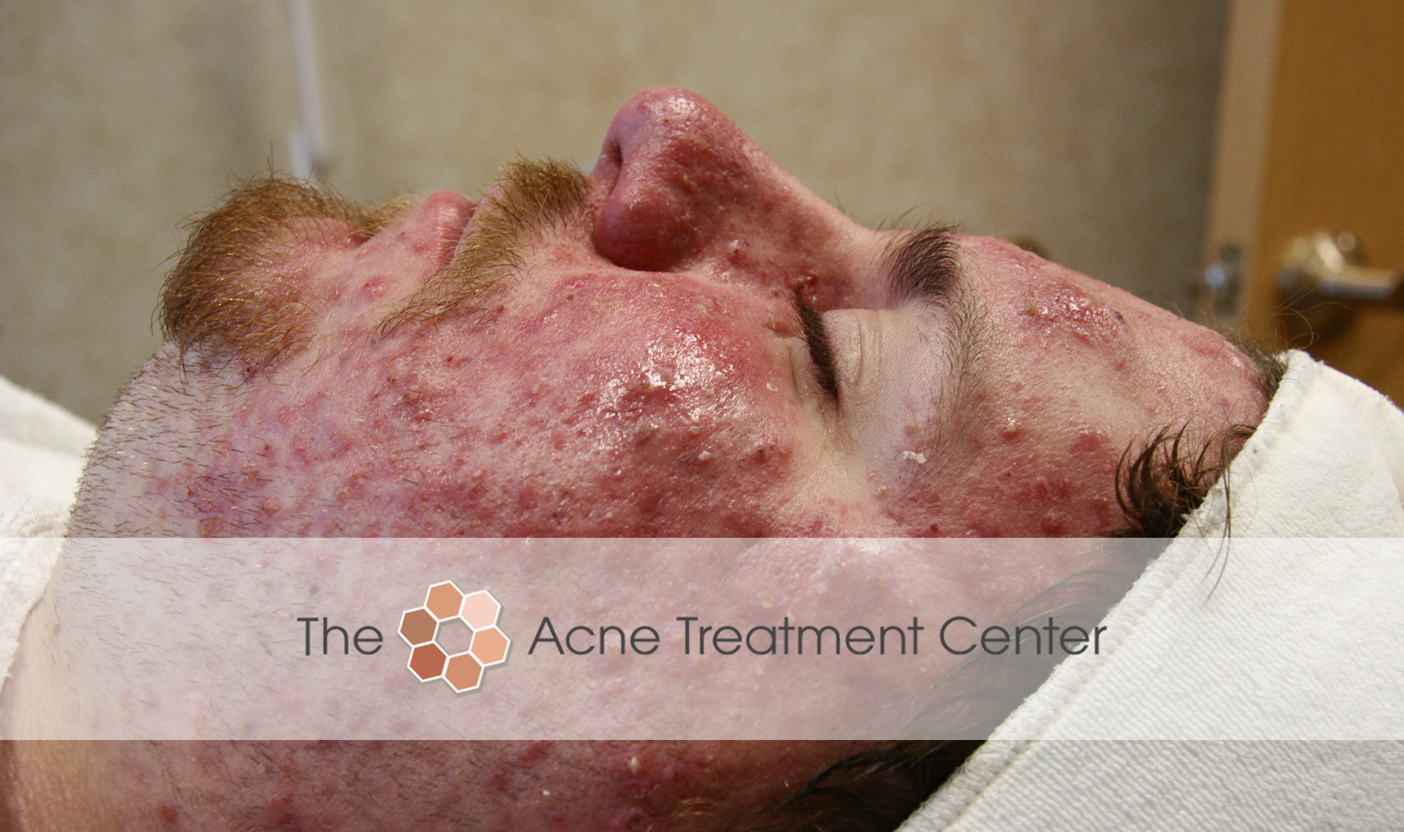 Rocasea Acne Treatment Photo