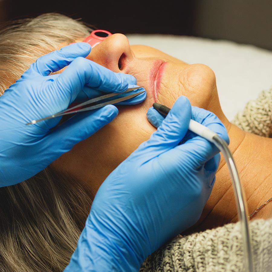 Acne Treatment Center | Electrolysis