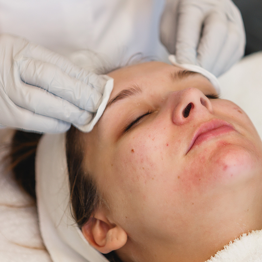 Acne Treatment Center | Acne Treatments