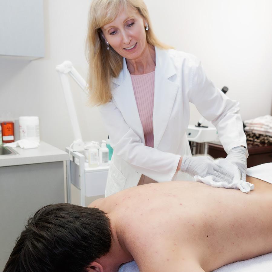 Back and Chest Acne Treatment | Acne Treatment Center