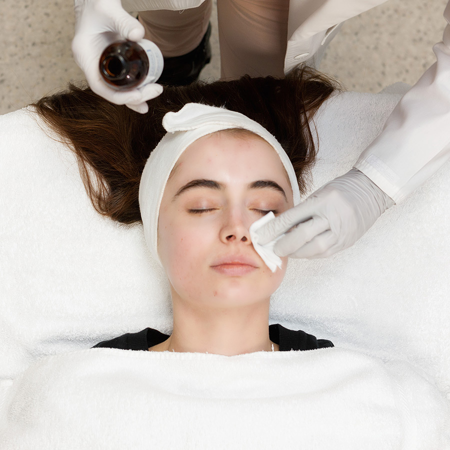 Medical Grade Chemical Peel | Acne Treatment Center