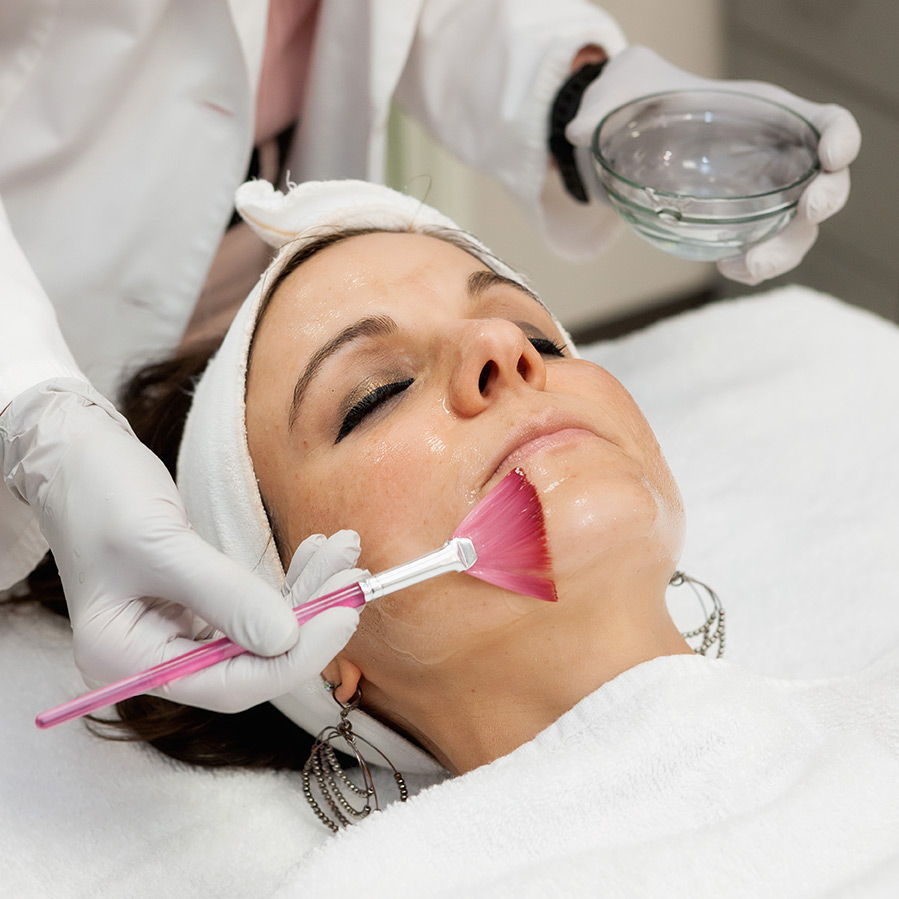 Acne Treatment Center | Chemical Peel