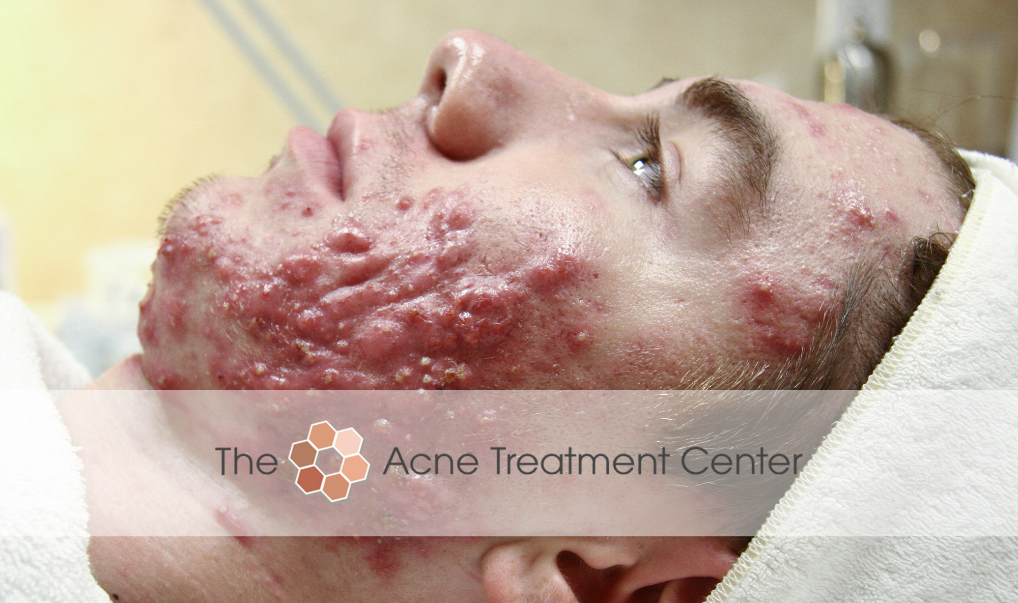 Conglobata Acne Treatment Photo