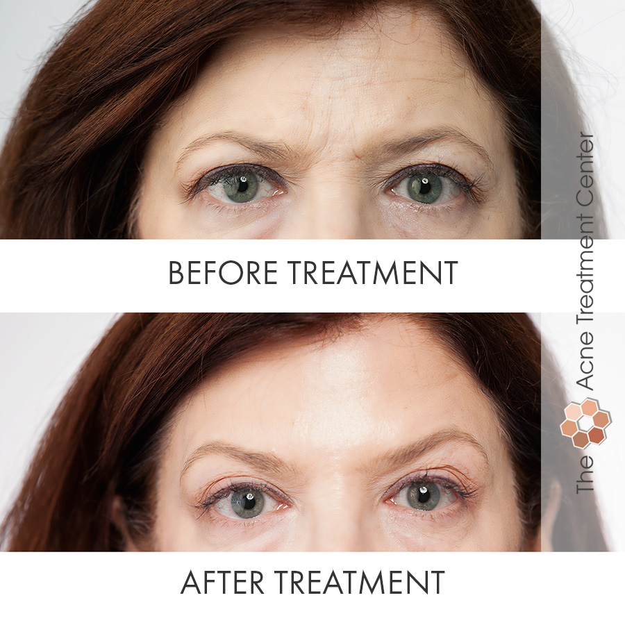 Botox before and after Vancouver WA