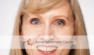 Acne Treatment Center Botox Treatment