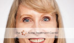 Acne Treatment Center - After Botox Treatment