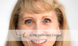 Acne Treatment Center - Before Botox Treatment