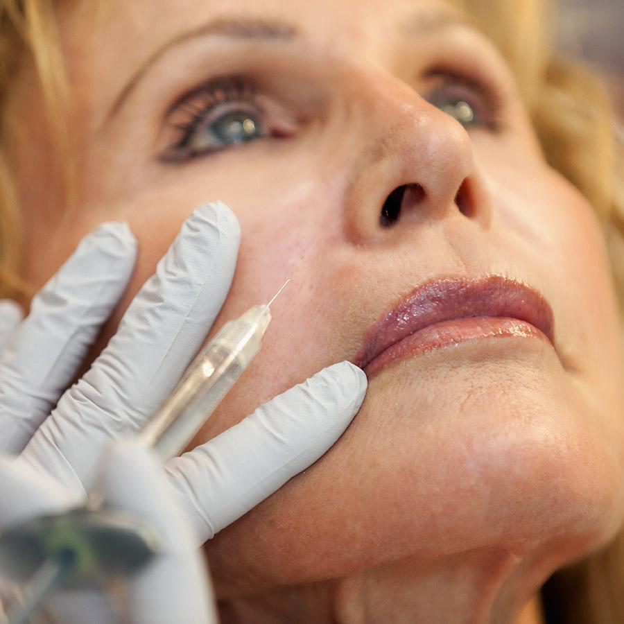 Acne Treatment Center | Juvederm