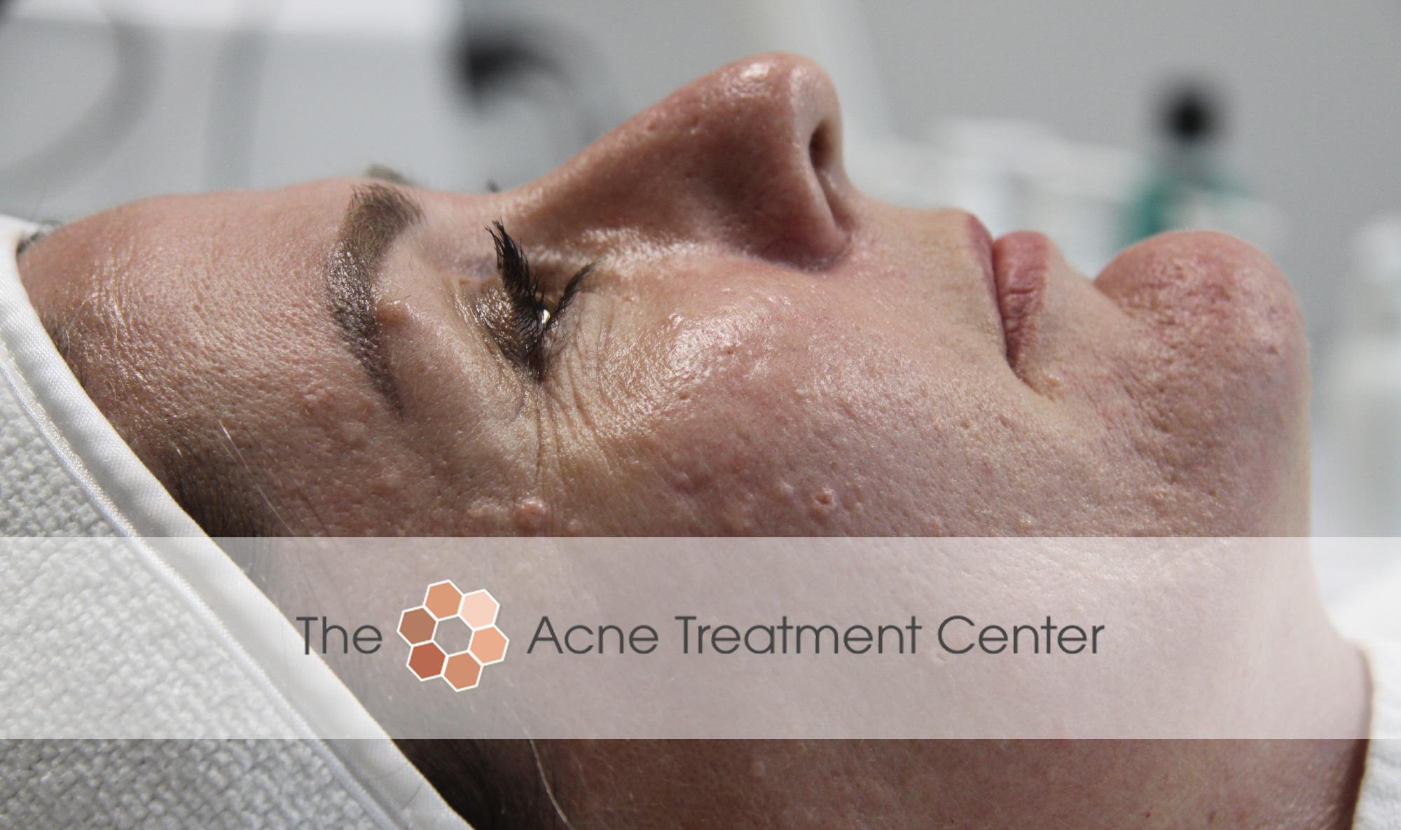 Acne Treatment Center in Portland Oregon Treats Sebaceous Hyperplasia