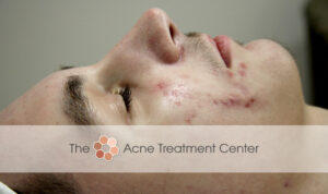 Conglobata Acne Treatment After Photo