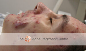 Conglobata Acne Treatment Before Photo