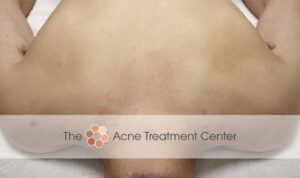 Back Acne Treatment After Photo
