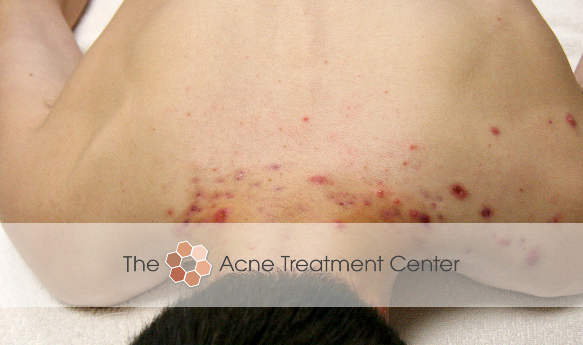 Back Acne Treatment Before Photo