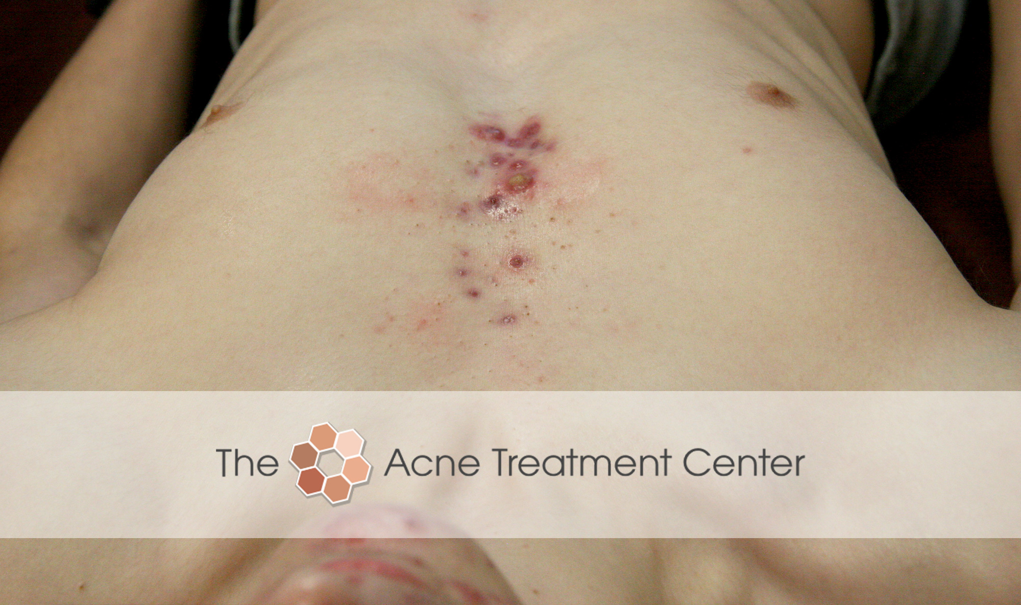Chest Acne Treatment Before Photo